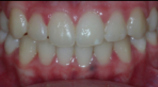 Woodhaven Before and After Invisalign